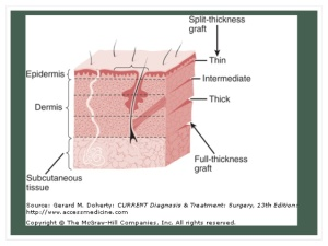 skin-graft-and-skin-flap-16-638